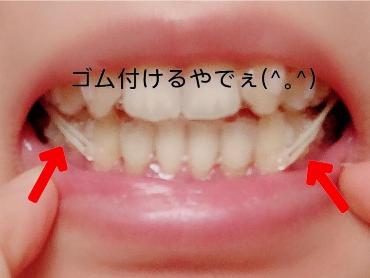 歯にゴムをつける