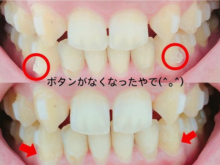 前歯のアタッチメントのボタンが取れた