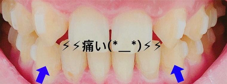 前歯の写真