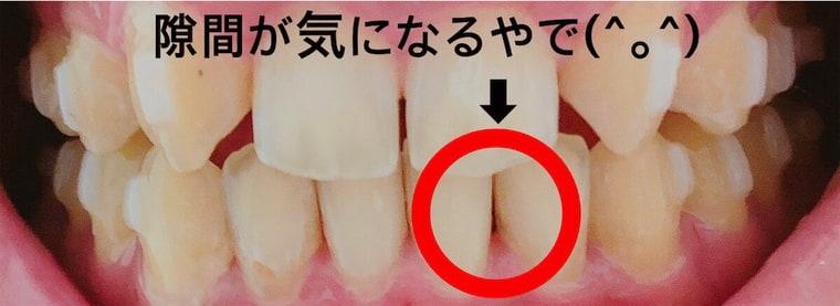 下の前歯の隙間
