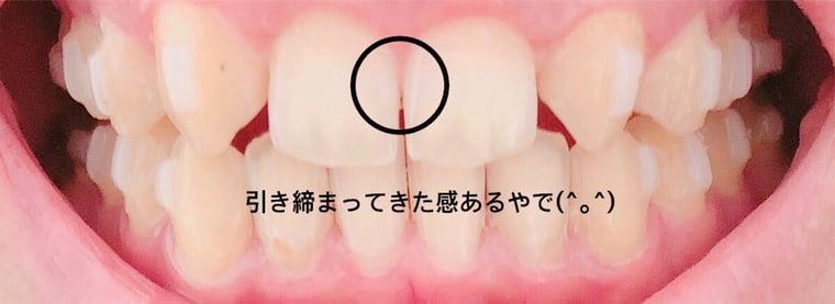 前歯の隙間1