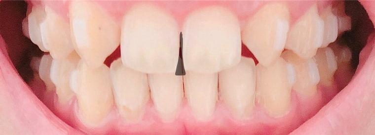 前歯の隙間2