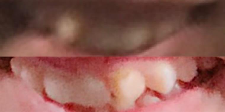 犬歯が目立つ歯