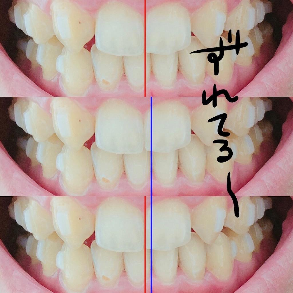 前歯の正中がズレてる