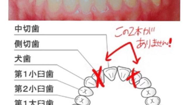 歯と歯並びの図