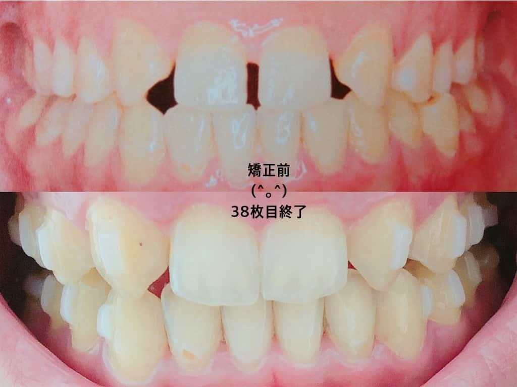 歯列矯正前と後マウスピース38枚目