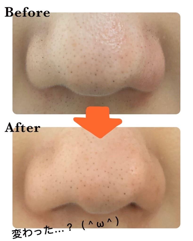 ハイドラフェイシャルの鼻のビフォーアフター