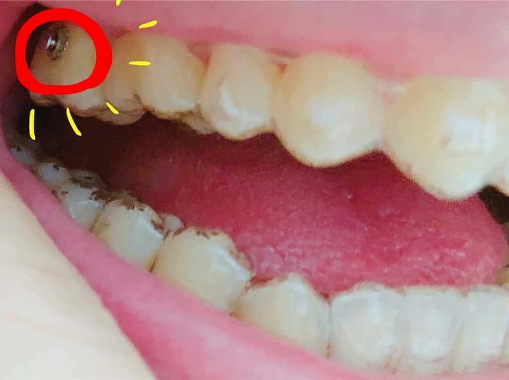 ゴムを引っ掛けるボタンがついた歯