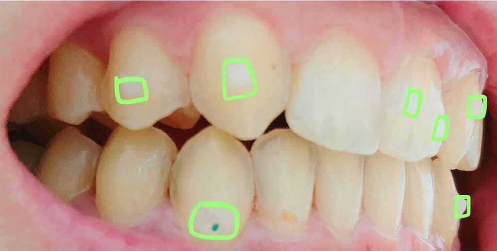 アタッチメントがついた歯 左側