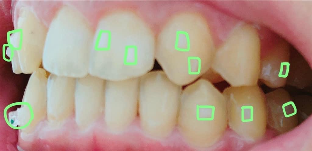 アタッチメントがついた歯 右側