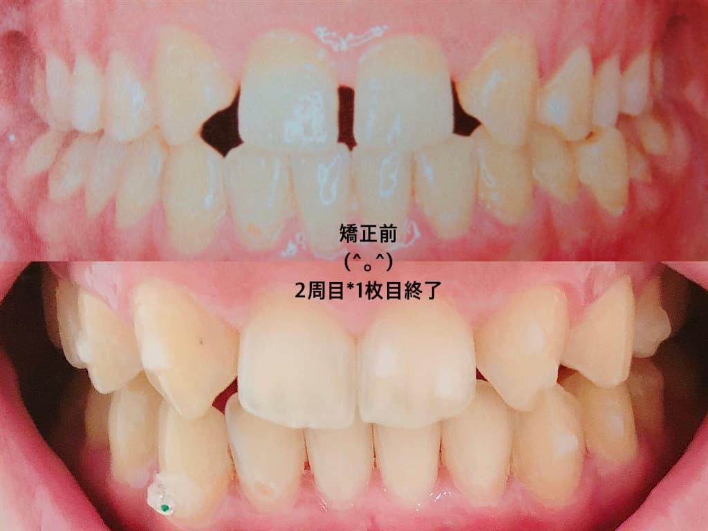 矯正前と矯正中の歯の変化