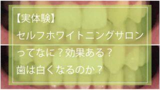 【実体験】セルフホワイトニングサロンって何?効果ある?歯は白くなるのか?