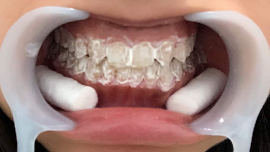 歯に薬剤を塗った歯と開口器で口を開けている