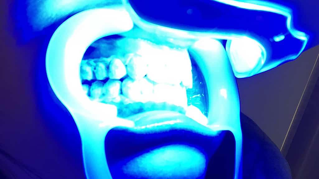 セルフホワイトニングサロンでLED照射して青い光に当たってる口元